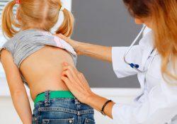 afectiuni-coloana-vertebrala-copii