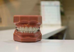 rolul-aparatului-dentar-si-ce-alegeri-poti-face