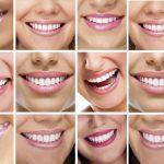 Tot ce trebuie sa stiti despre fatete dentare de la https://www.megasmile.ro