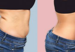 abdominoplastie_fb
