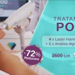Afla cum poti scapa de pori dilatati cu ajutorul laserului
